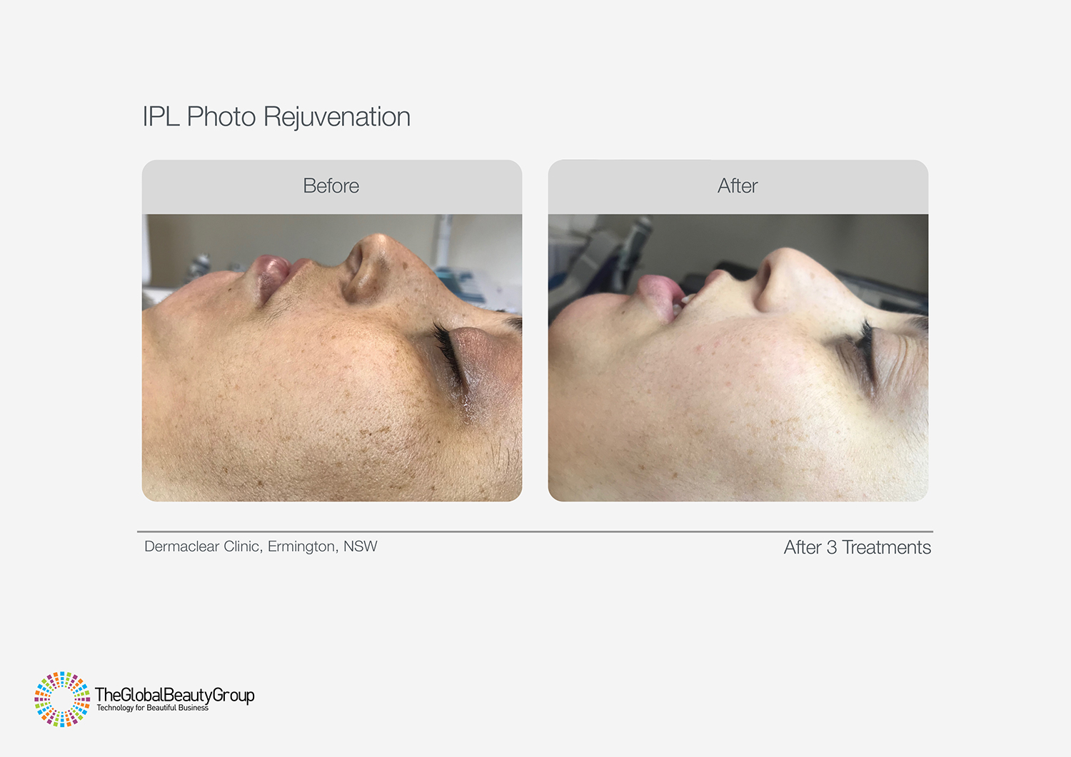 IPL BEFORE AND AFTER SHOWING PIGMENTATION REDUCTION