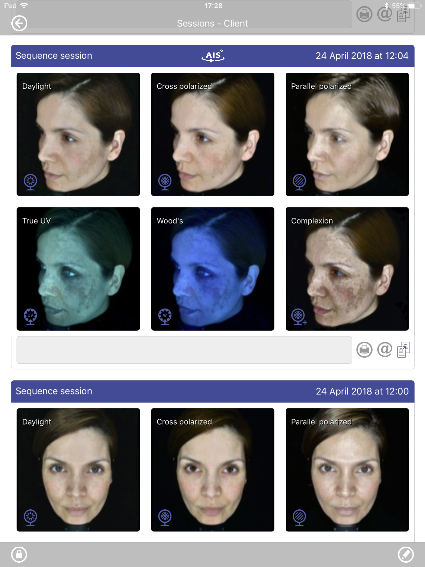 6 light affected images of skin for analysis