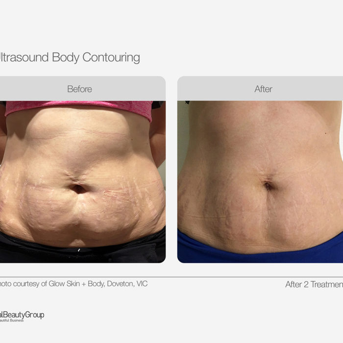 Body-Contouring-before-and-After-of-a-lady-with-stretch-marks-on-her-abdomen- showing-the-tightened-and-smooth-effectivness-of-treatment