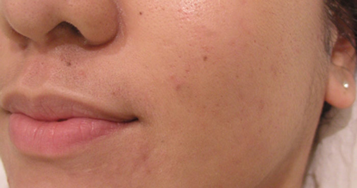DMK Acne skin care program after