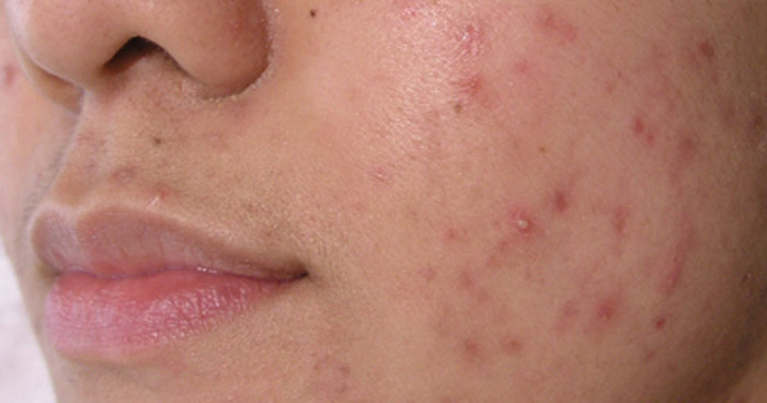 DMK Acne skin care program before