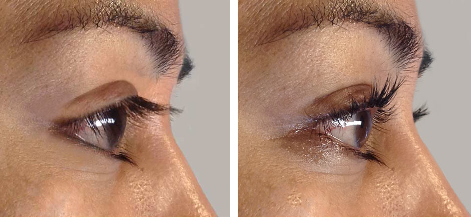 Eyelash perming before and after