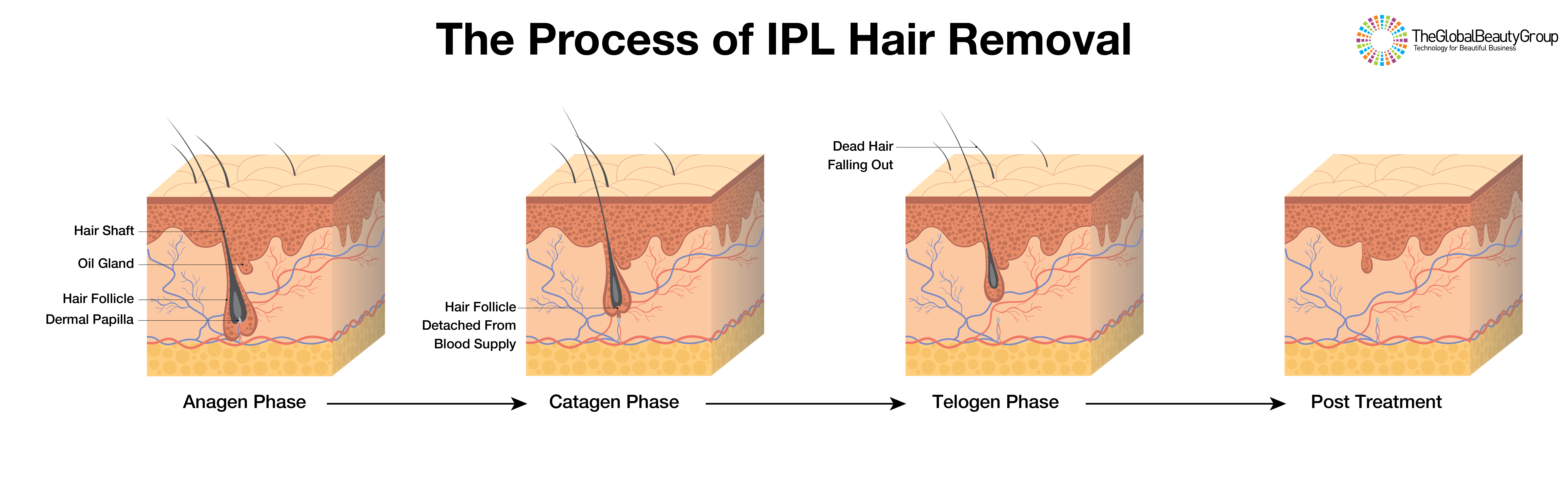 The-process-of-IPL-hair-removal-