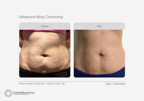 -stomach-fat-cavitation-ultrasound-body-contouring-before-and-after-image-of-lady