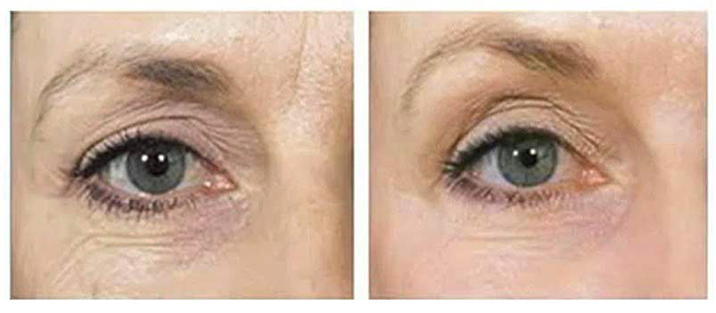 collagen induction therapy treatment